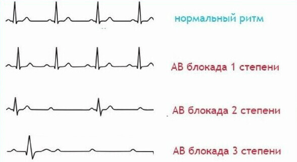 диагностика блокады сердца в Израиле