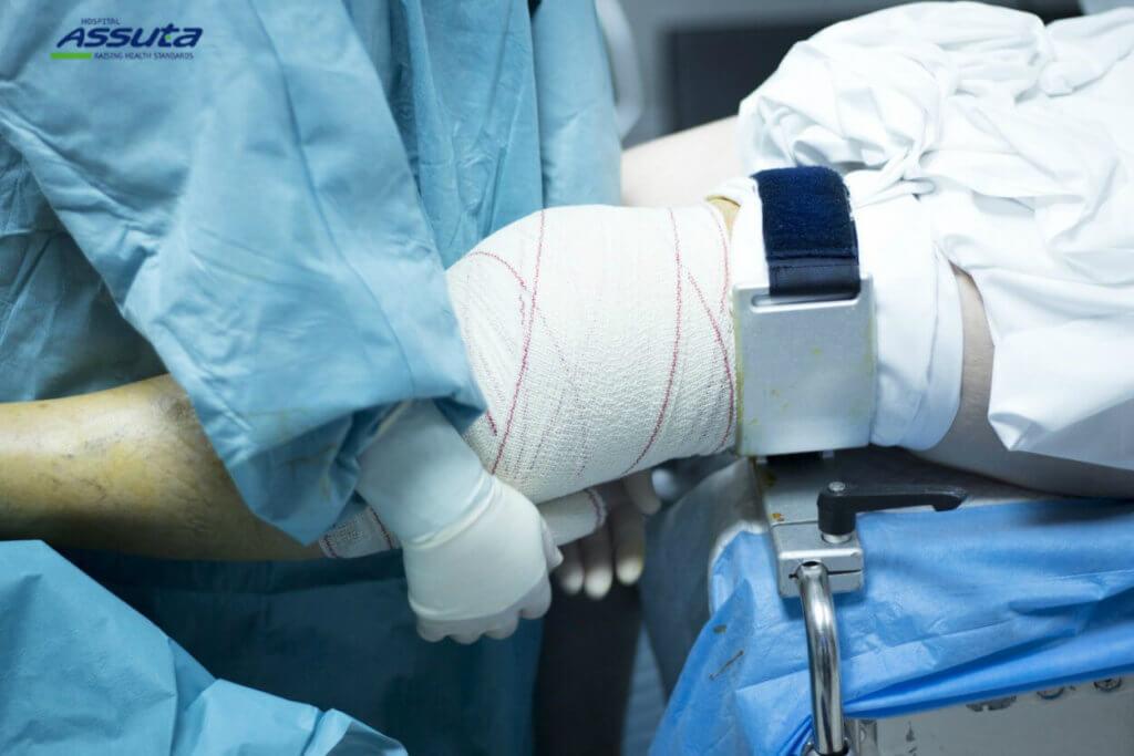 подготовка к ортопедической операции