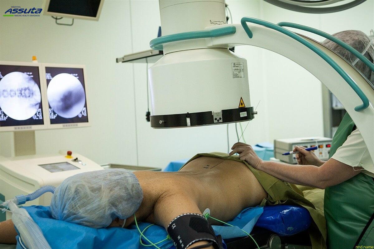 нейронавигация при лечении спины