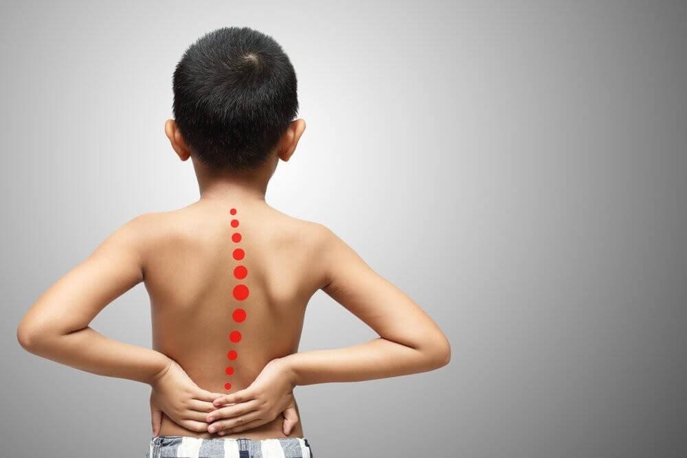 лечение сколиоза у детей в Израиле