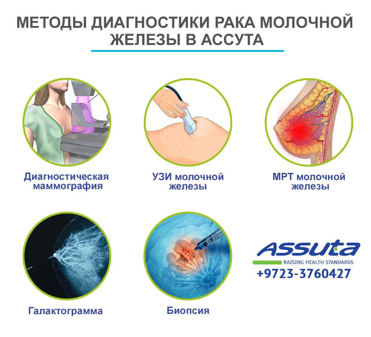 Методы диагностики рака молочной железы в Ассута