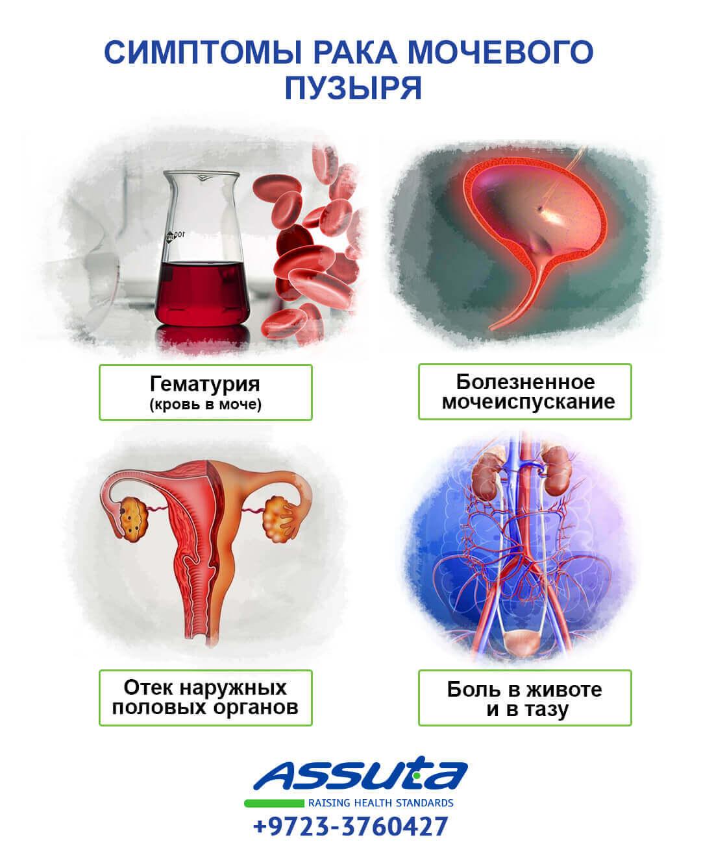 Симптомы рака мочевого пузыря
