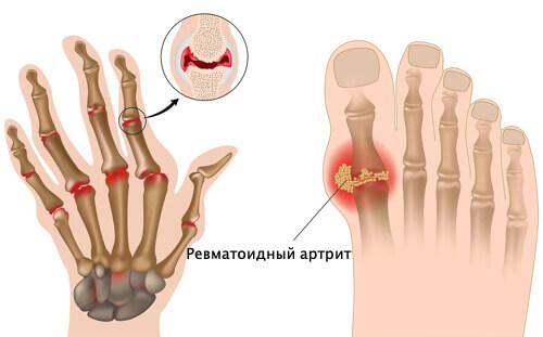 методы лечения ревматоидного артрита в Израиле