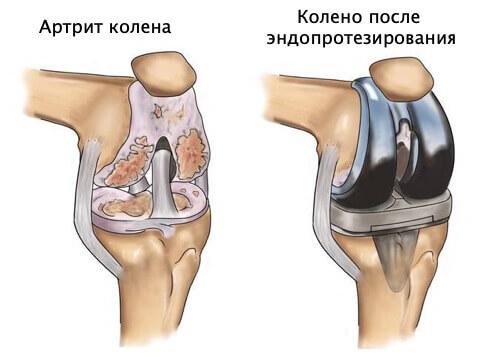 эндопротезирование коленного сустава в Израиле